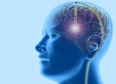 布朗大学研发下一代闭环脑机接口神经刺激器,用于治疗帕金森、强迫症等