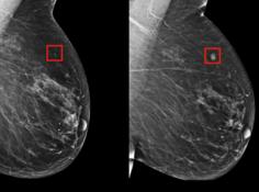 早发现早治疗系列之乳腺癌:DL模型为患者争取五年治疗时间
