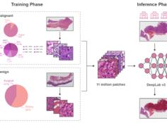 Nature子刊 | 可用于临床诊断的人工智能胃癌病理辅助诊断系统