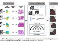 点内科技、华东医院及上海交大合著论文:3D深度学习在CT影像预测早期肿瘤浸润方面超过影像专家