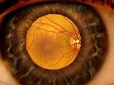 谷歌研发人工智能眼科医生:用深度学习诊断预防失明