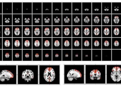图神经网络在医学影像中的应用
