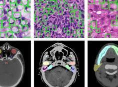 医学影像顶会MICCAI 2019于深落幕:两场国际挑战赛开放有专家标注的CT数据