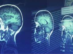 英特尔AI医疗实战曝光:10倍加速辅助诊断、准确度高达90%