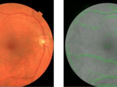 通过分析视网膜图像诊断心脑血管疾病:谷歌大脑团队取得医疗深度学习新进展